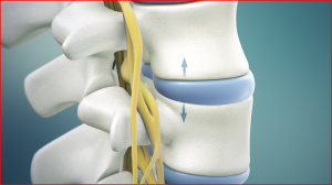 Is Non-Surgical Spinal Decompression Your Back Pain Solution?